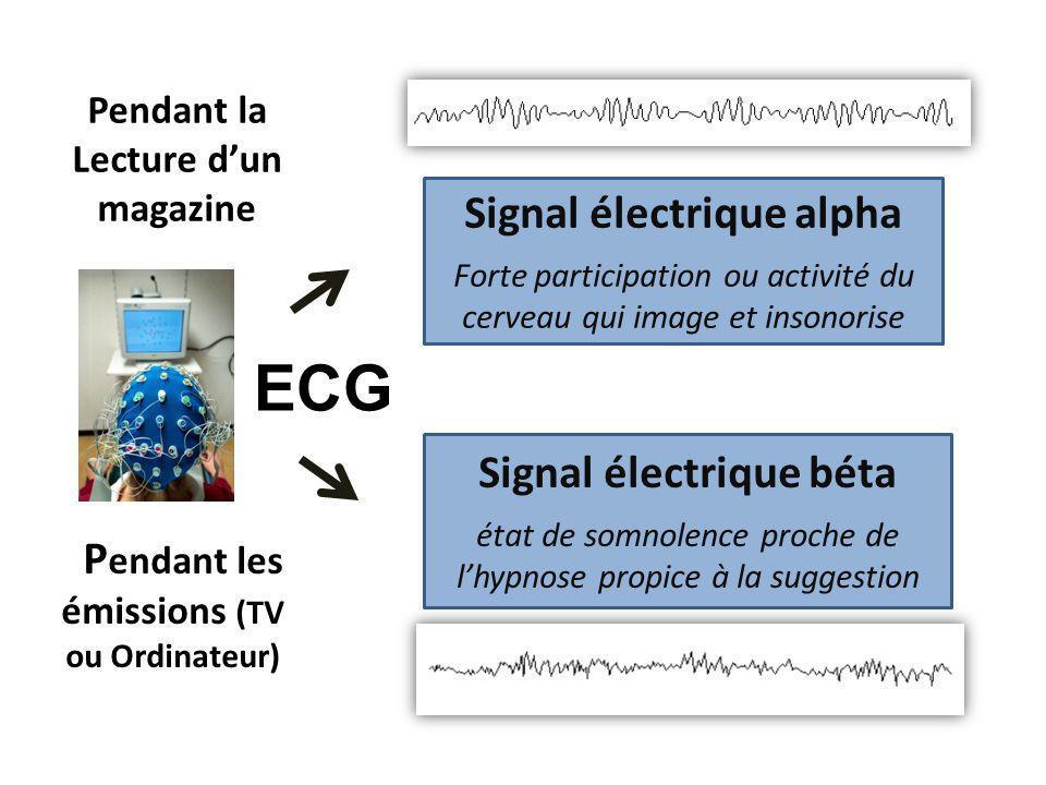 ECG Signal électrique alpha Signal électrique béta