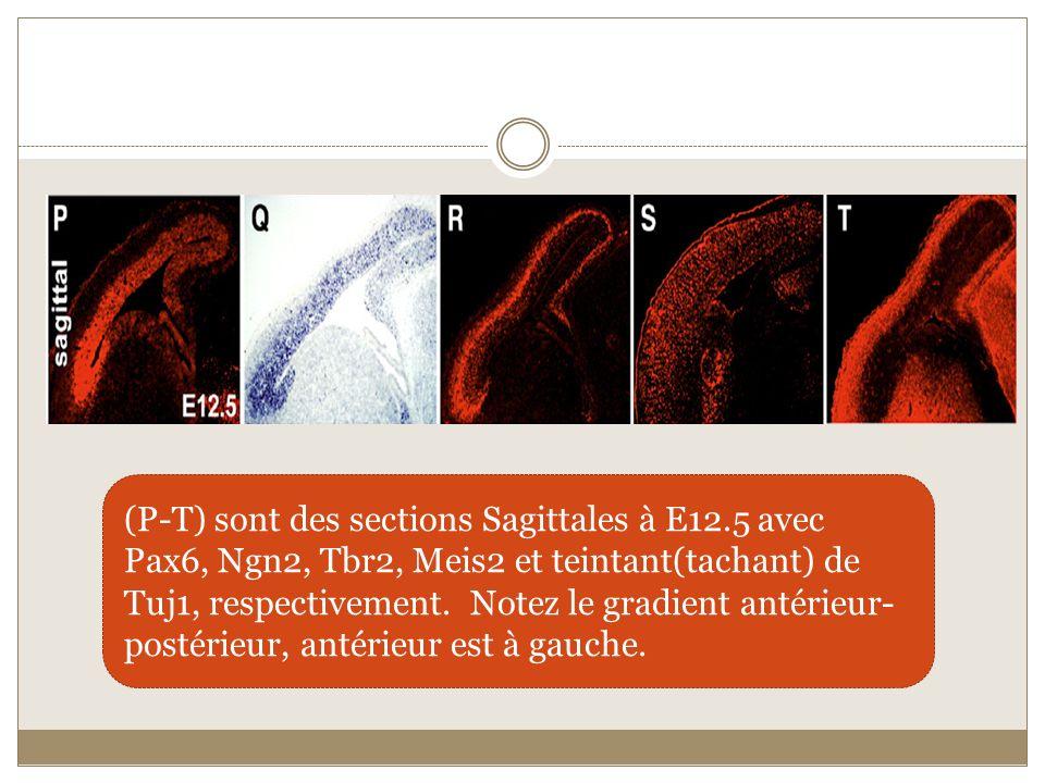 (P-T) sont des sections Sagittales à E12