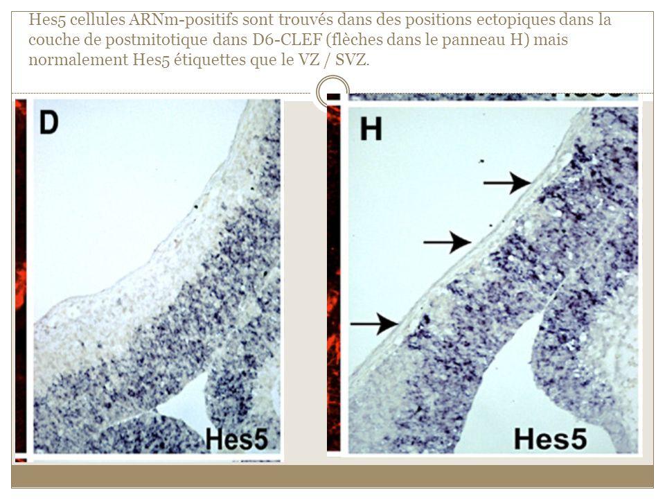 Hes5 cellules ARNm-positifs sont trouvés dans des positions ectopiques dans la couche de postmitotique dans D6-CLEF (flèches dans le panneau H) mais normalement Hes5 étiquettes que le VZ / SVZ.
