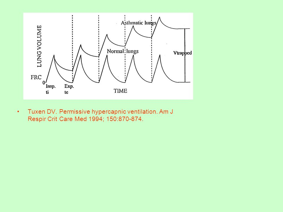Tuxen DV. Permissive hypercapnic ventilation