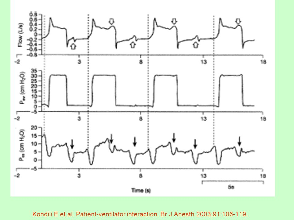 Kondili E et al. Patient-ventilator interaction