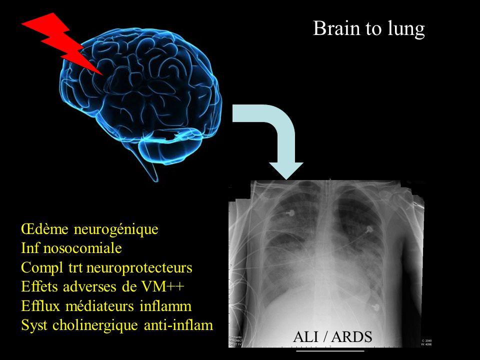 Brain to lung Œdème neurogénique Inf nosocomiale