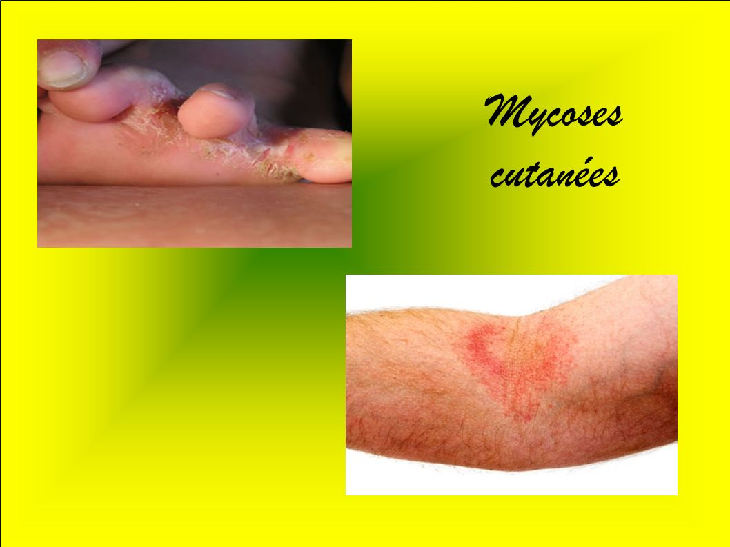 Mycoses cutanées