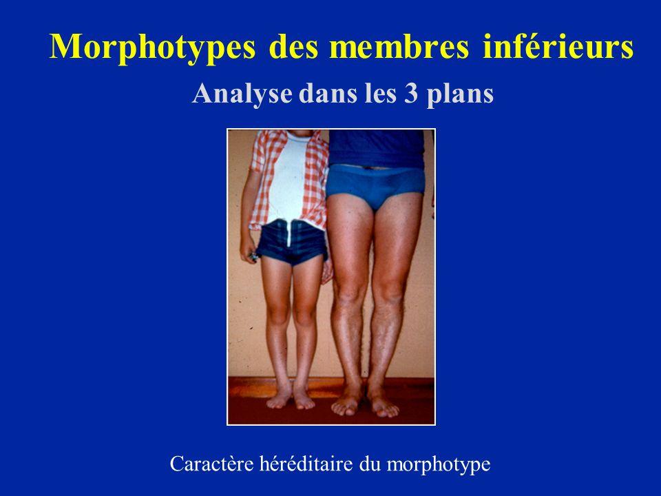 Morphotypes des membres inférieurs