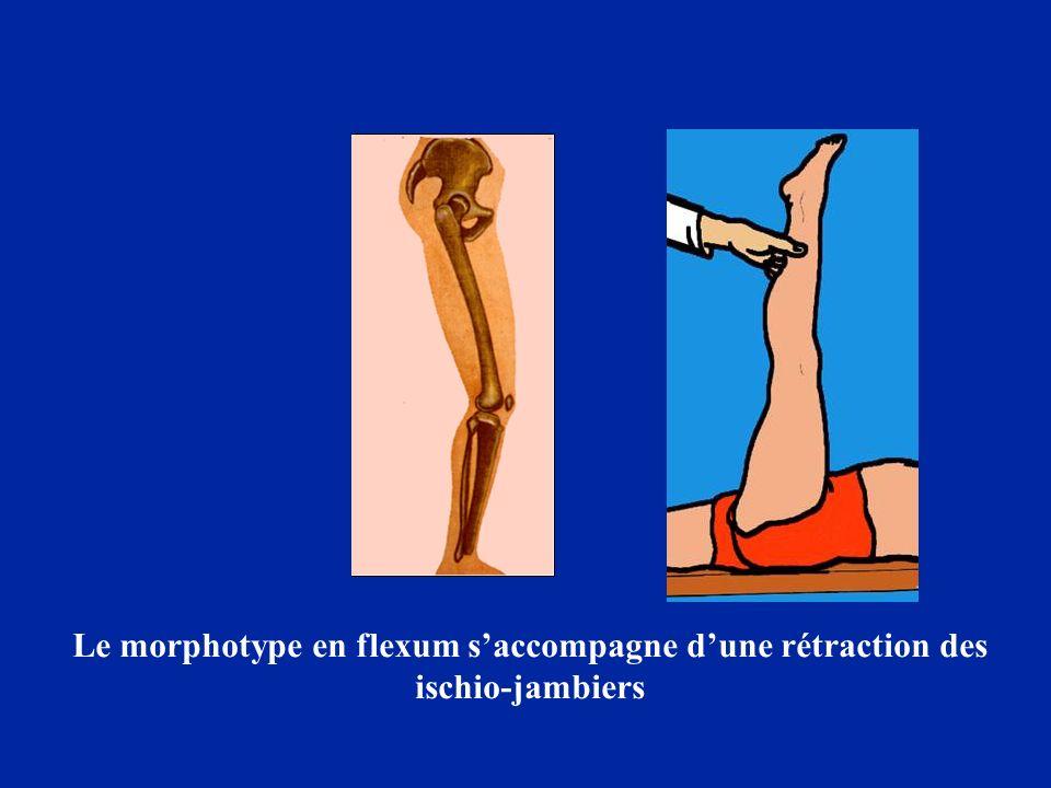 Le morphotype en flexum s'accompagne d'une rétraction des ischio-jambiers