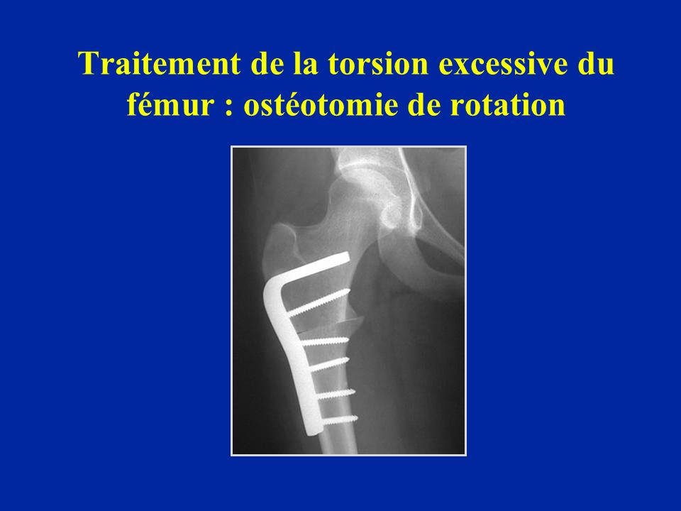 Traitement de la torsion excessive du fémur : ostéotomie de rotation