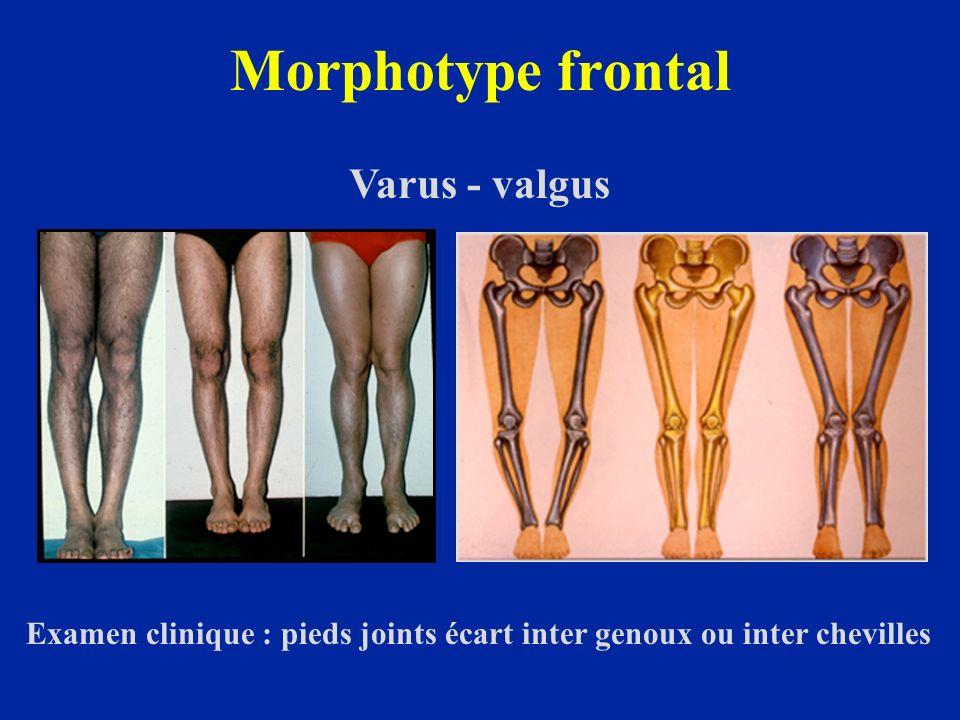 Morphotype frontal Varus - valgus