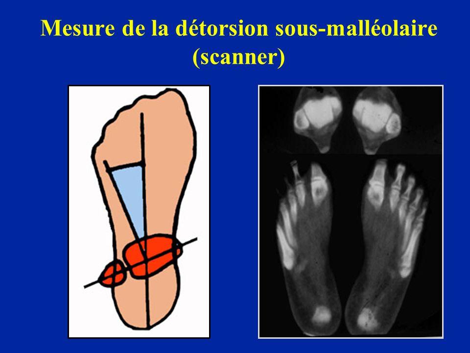 Mesure de la détorsion sous-malléolaire (scanner)