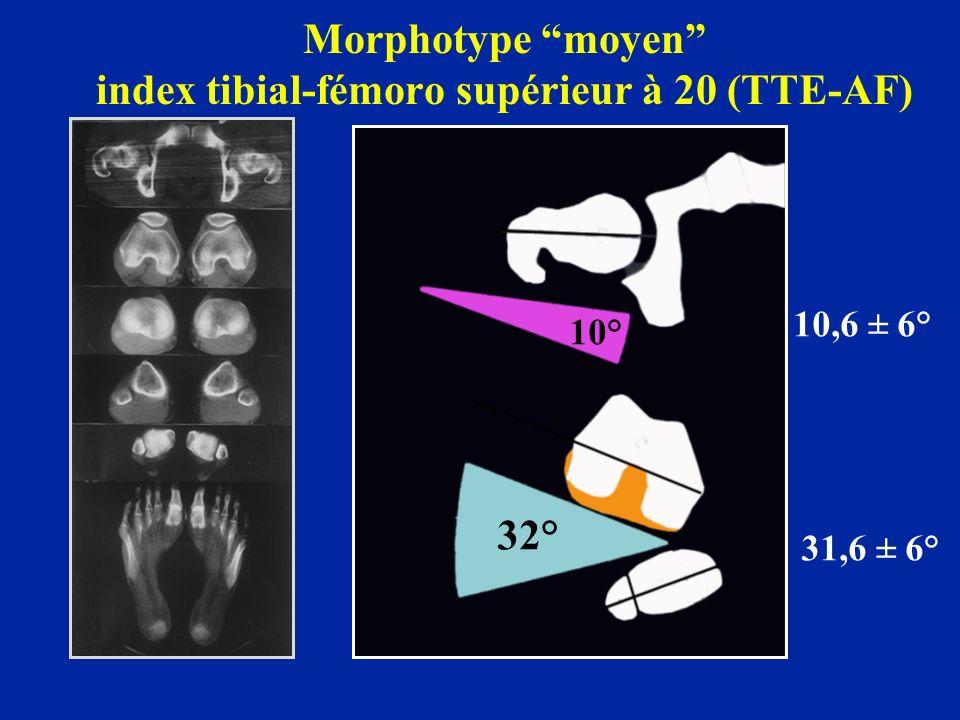 Morphotype moyen index tibial-fémoro supérieur à 20 (TTE-AF)