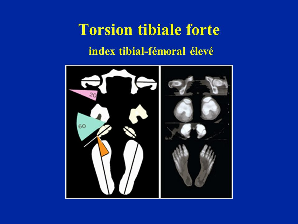 Torsion tibiale forte index tibial-fémoral élevé