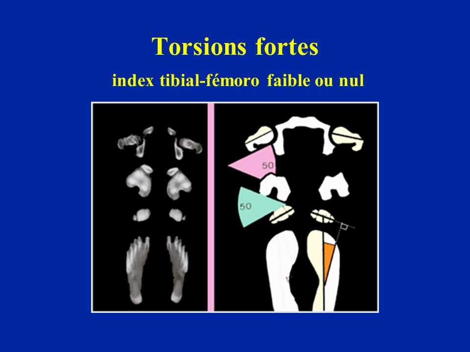 Torsions fortes index tibial-fémoro faible ou nul