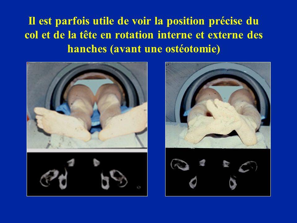 Il est parfois utile de voir la position précise du col et de la tête en rotation interne et externe des hanches (avant une ostéotomie)