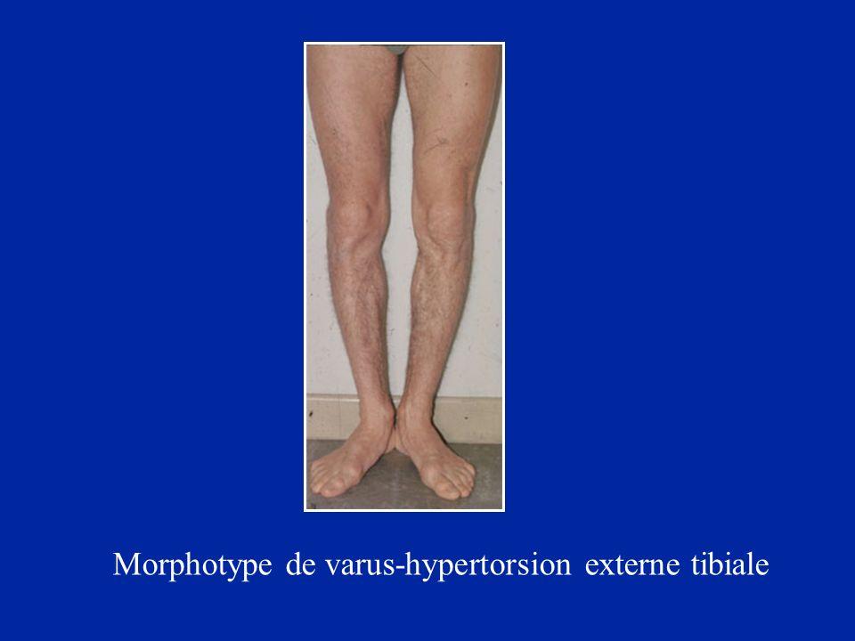 Morphotype de varus-hypertorsion externe tibiale