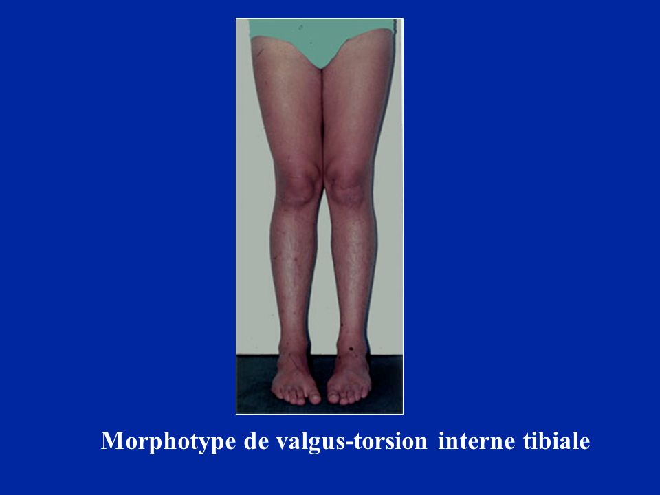 Morphotype de valgus-torsion interne tibiale