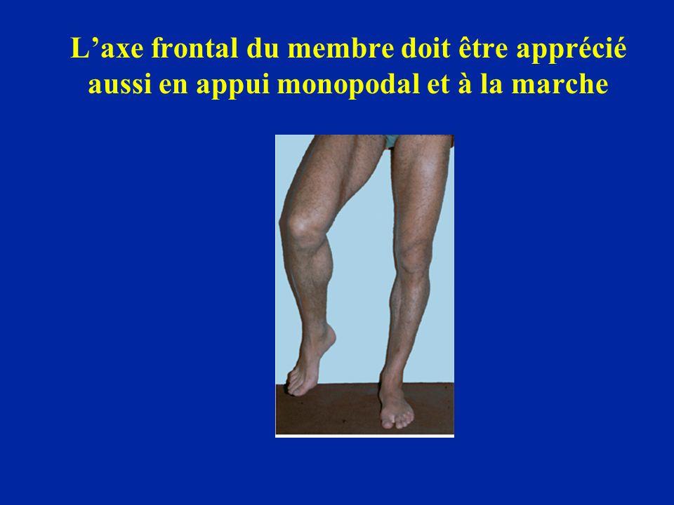 L'axe frontal du membre doit être apprécié aussi en appui monopodal et à la marche