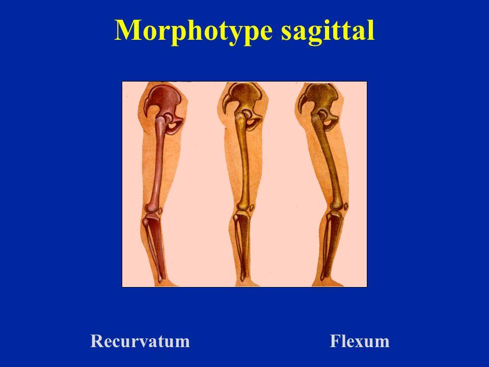 Morphotype sagittal Recurvatum Flexum