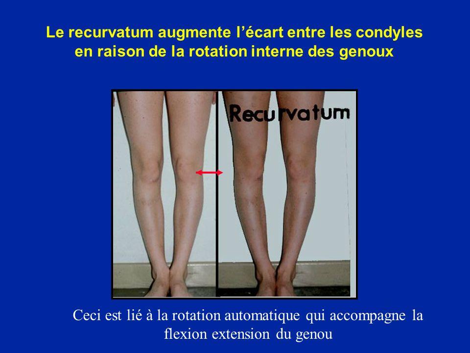 Le recurvatum augmente l'écart entre les condyles en raison de la rotation interne des genoux