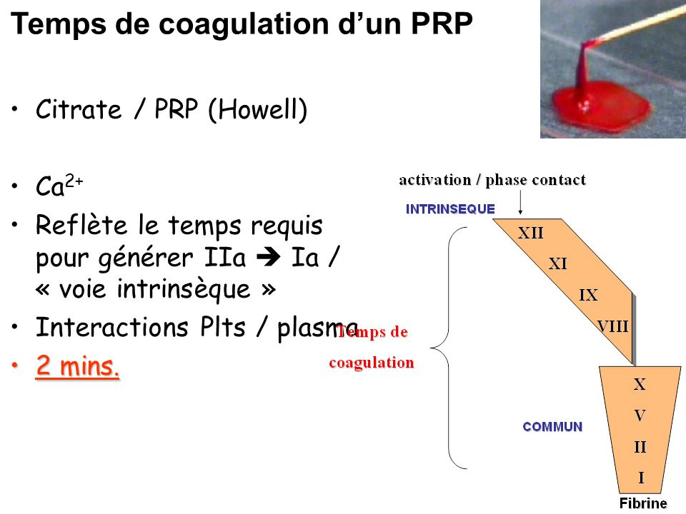 Temps de coagulation d'un PRP