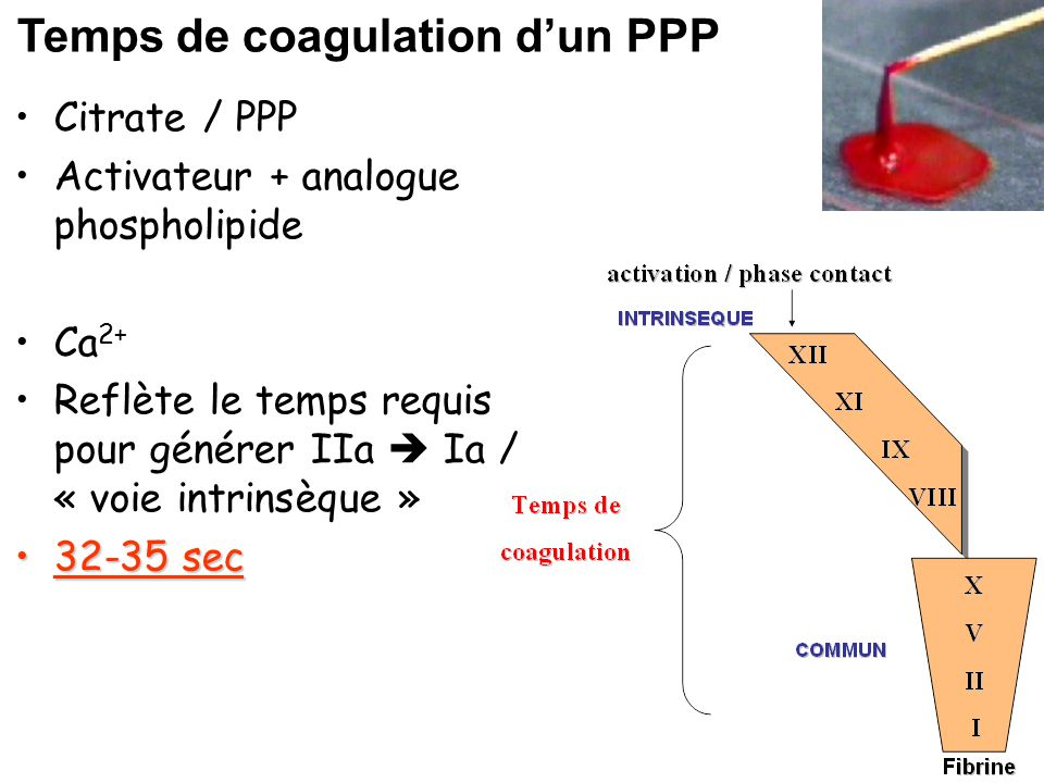 Temps de coagulation d'un PPP