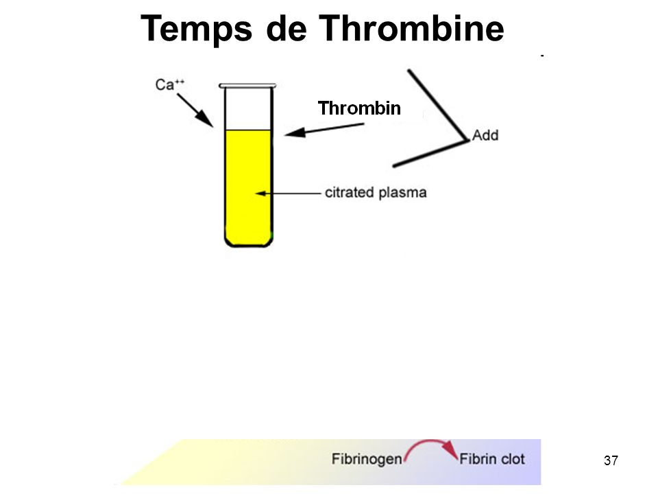Temps de Thrombine