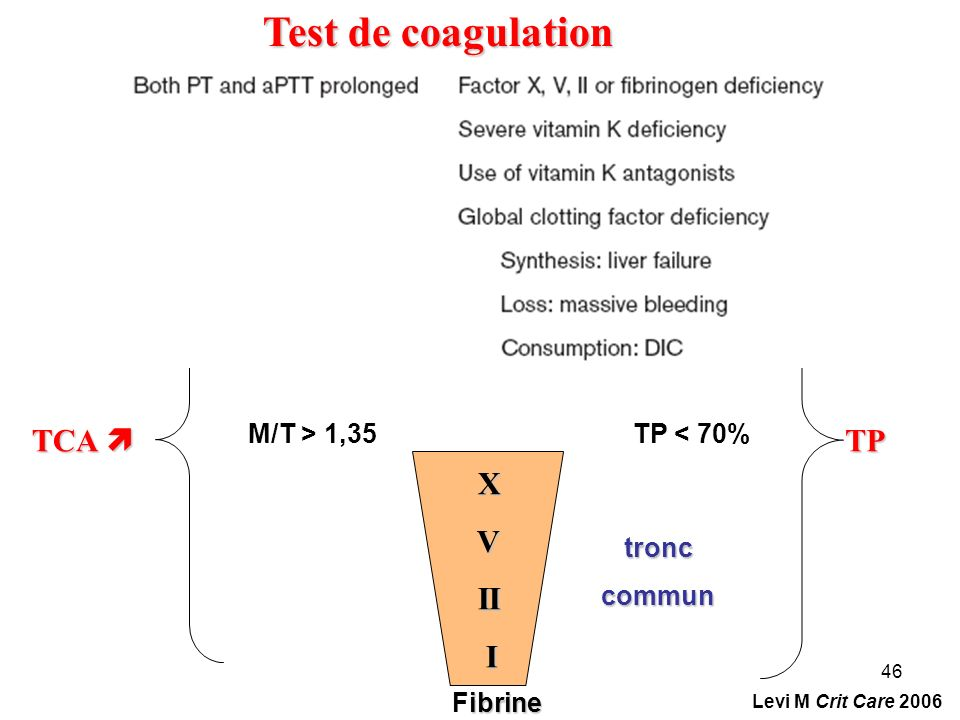 Test de coagulation TCA  TP X V II I M/T > 1,35 TP < 70% tronc
