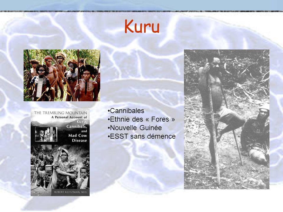 Kuru Cannibales Ethnie des « Fores » Nouvelle Guinée ESST sans démence