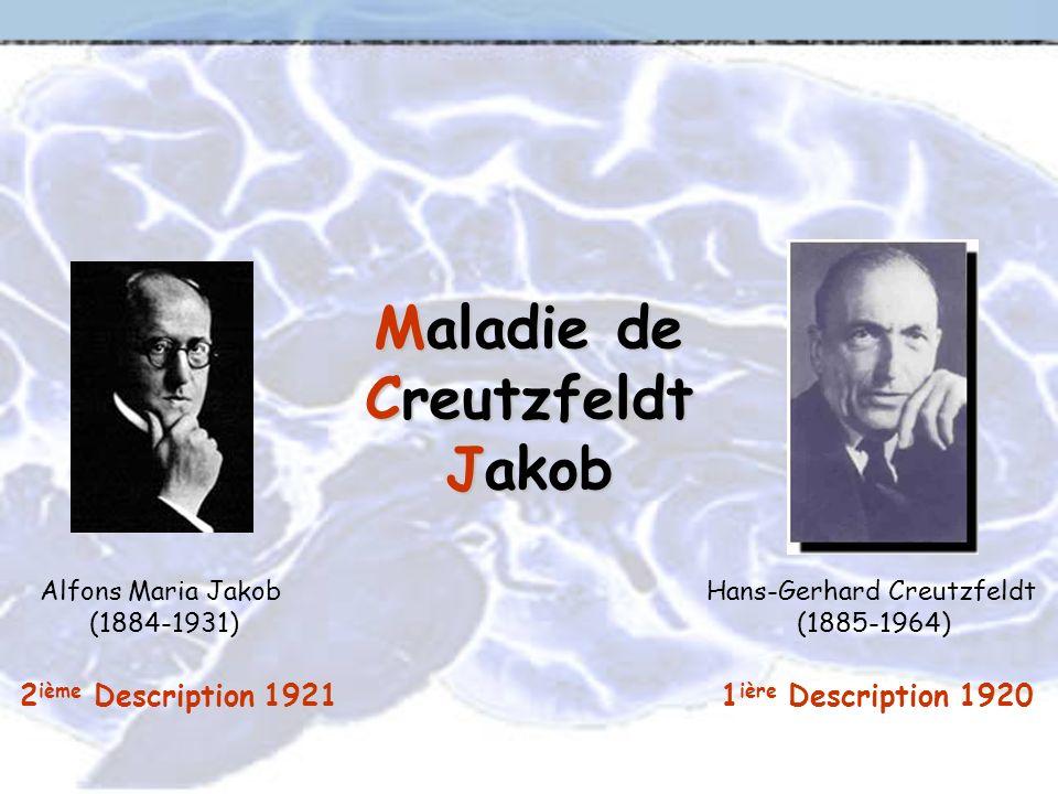 Maladie de Creutzfeldt Jakob