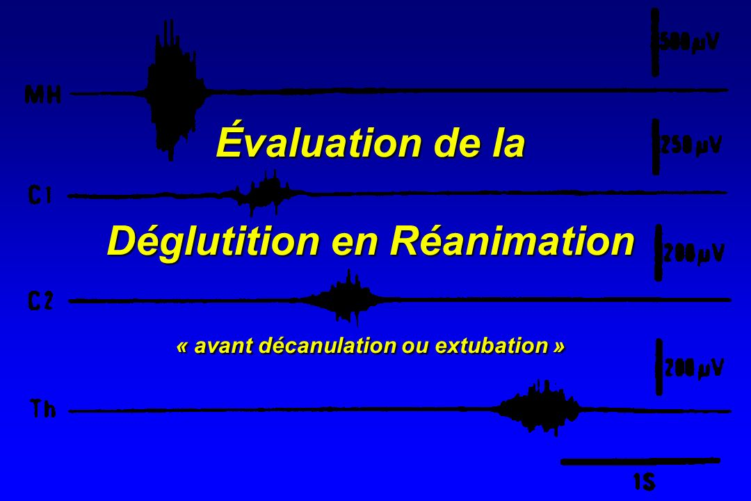Évaluation de la Déglutition en Réanimation « avant décanulation ou extubation »