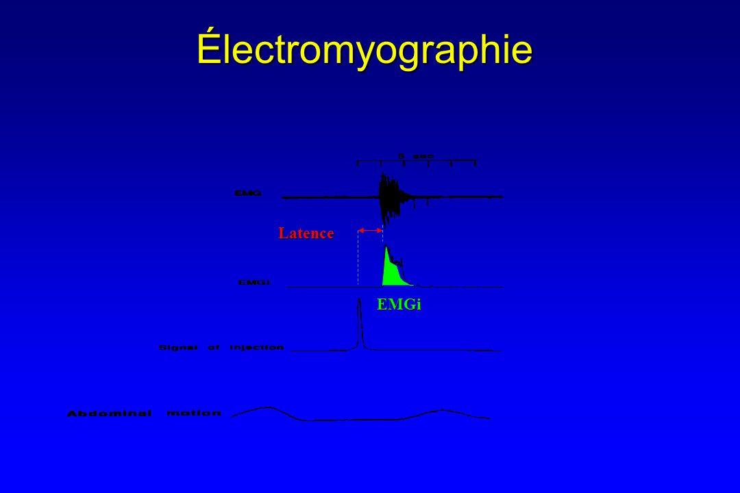 Électromyographie Latence EMGi