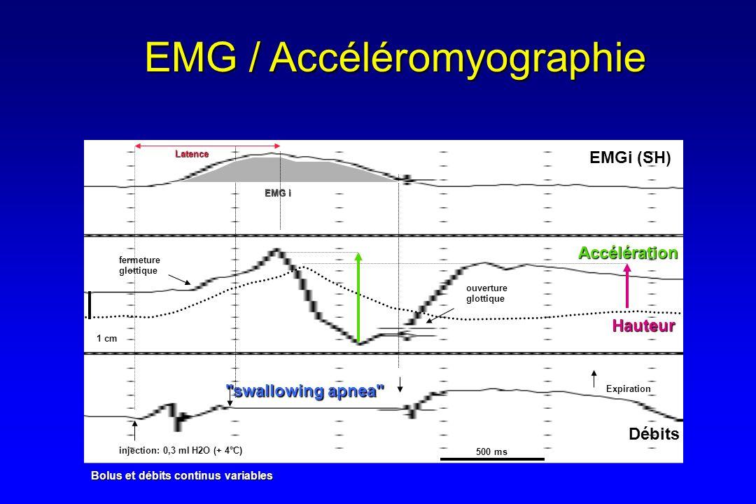 EMG / Accéléromyographie