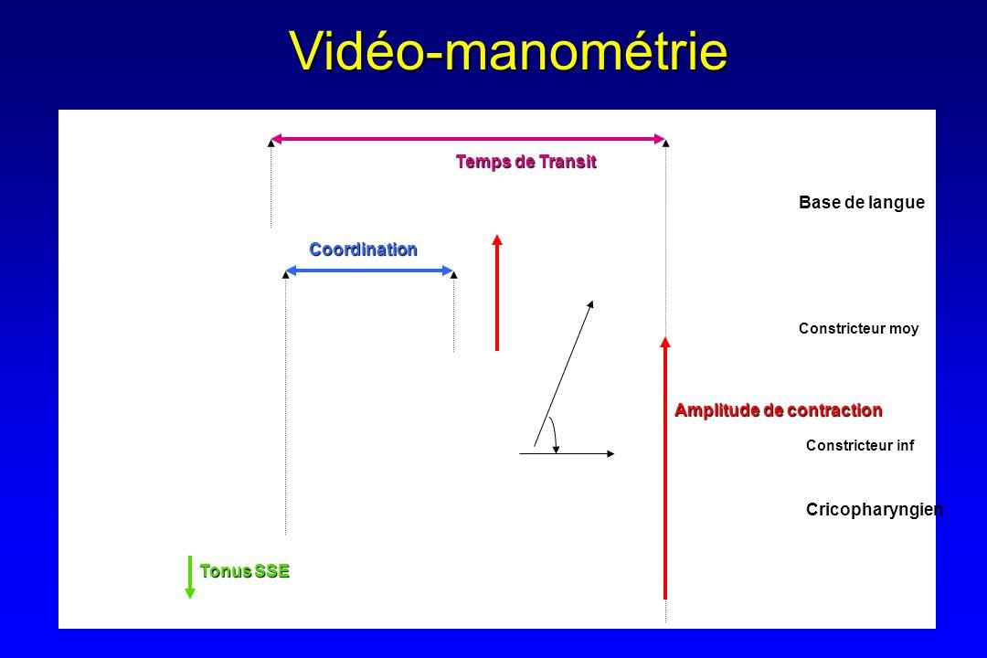 Vidéo-manométrie Temps de Transit Base de langue Coordination