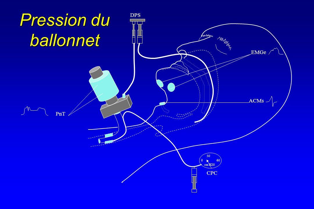 Pression du ballonnet DPS EMGe ACMs PnT 30 60 cm H20 CPC