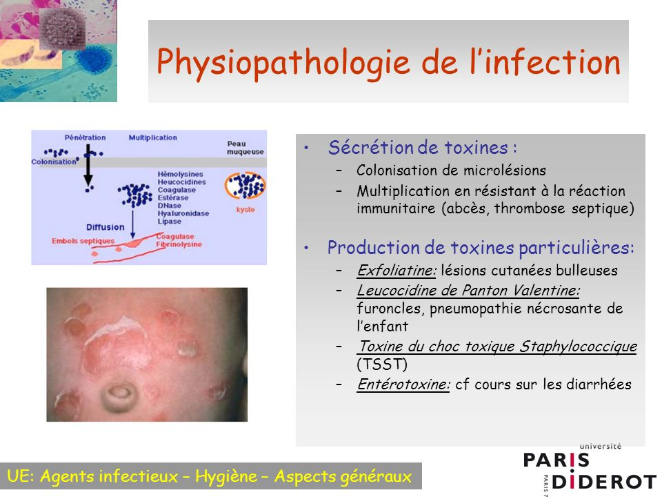 Physiopathologie de l'infection