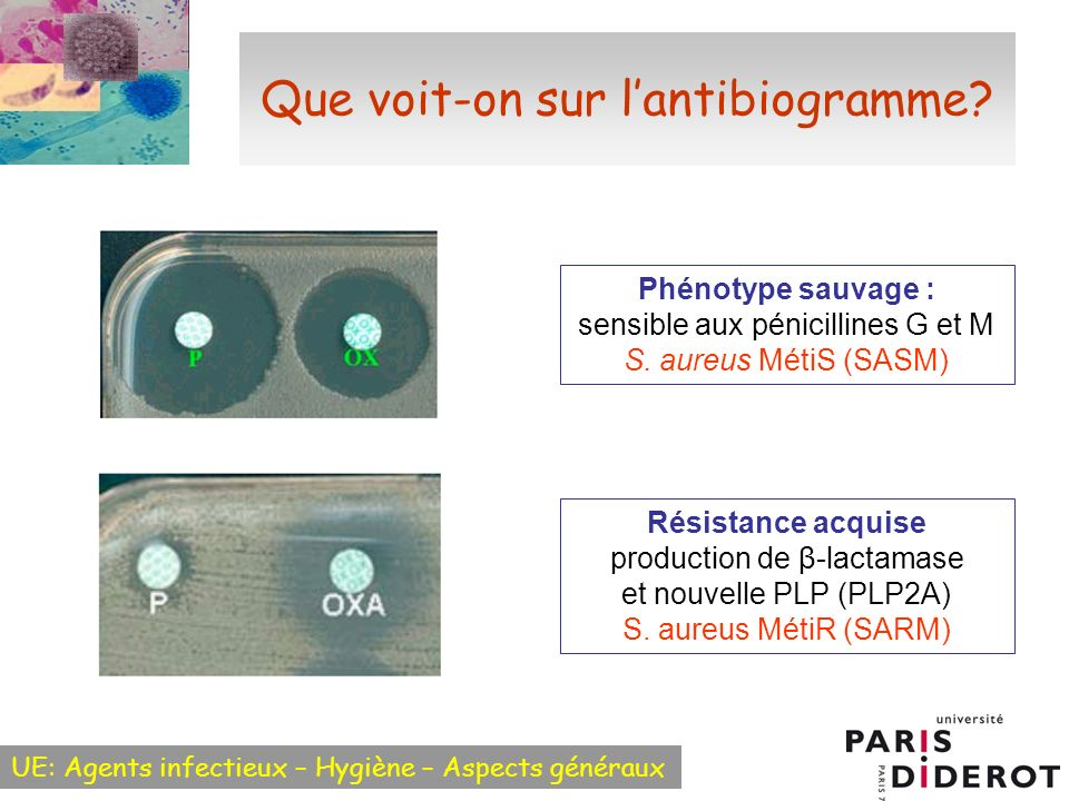 Que voit-on sur l'antibiogramme