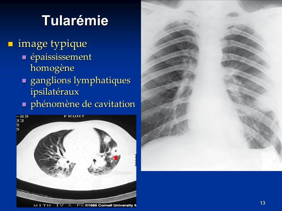 Tularémie image typique épaississement homogène