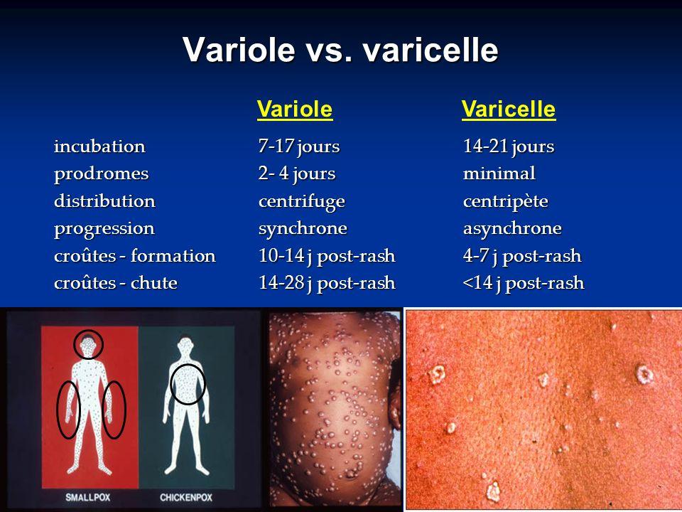 Variole vs. varicelle Variole Varicelle