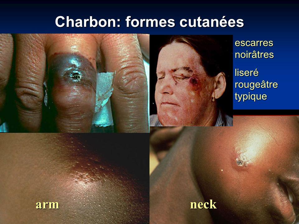 Charbon: formes cutanées