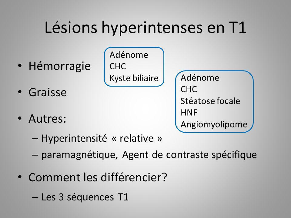 Lésions hyperintenses en T1