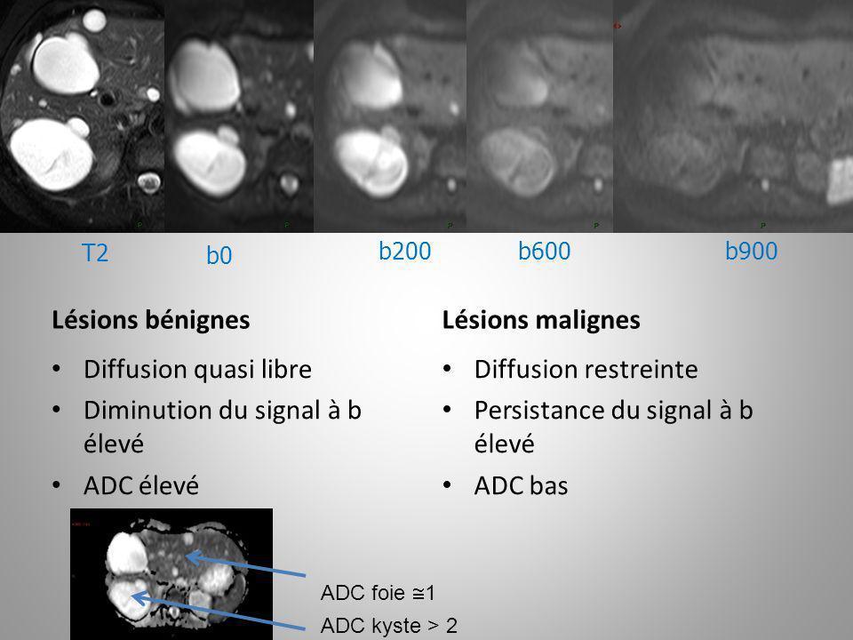 Diminution du signal à b élevé ADC élevé Diffusion restreinte