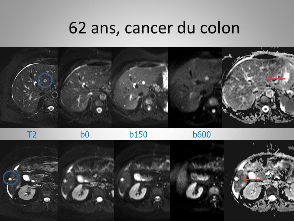 62 ans, cancer du colon T2 b0 b150 b600
