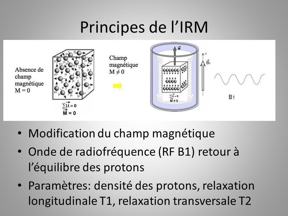 Principes de l'IRM Modification du champ magnétique