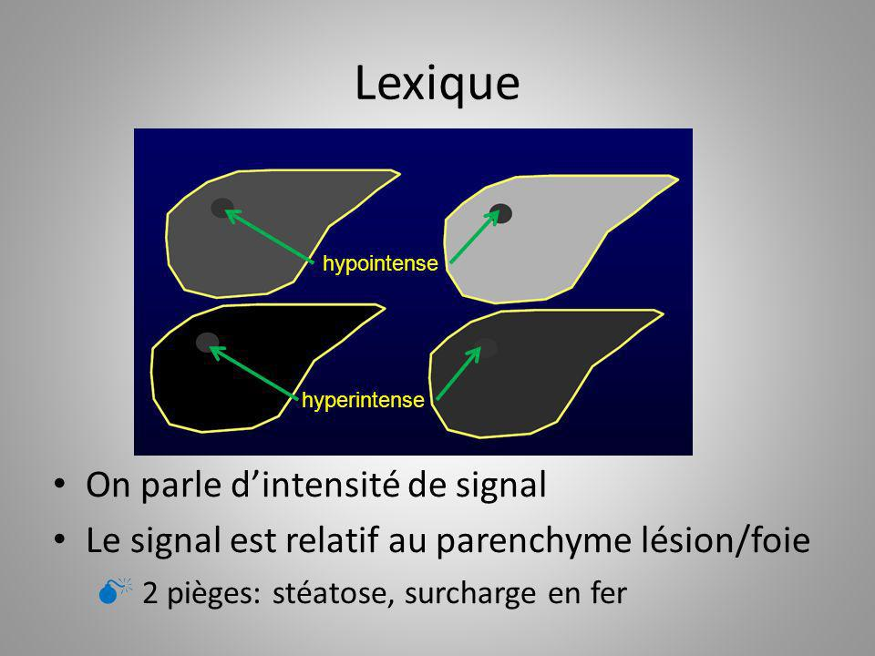 Lexique On parle d'intensité de signal