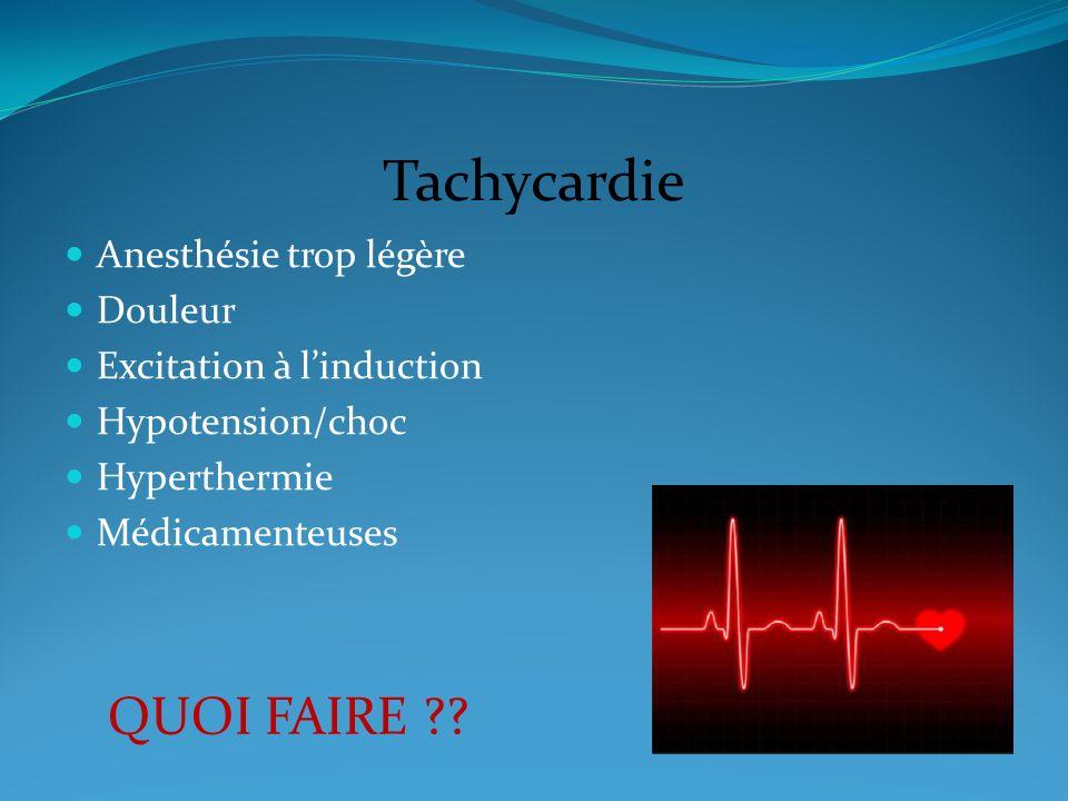 Tachycardie QUOI FAIRE Anesthésie trop légère Douleur