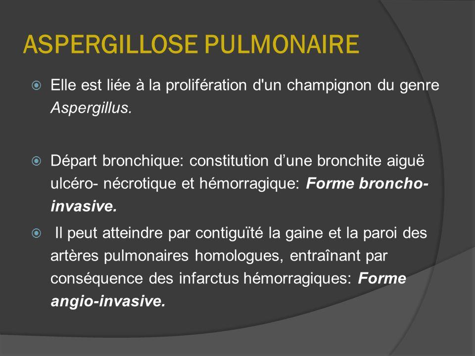 ASPERGILLOSE PULMONAIRE
