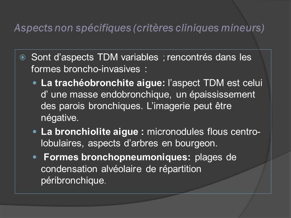 Aspects non spécifiques (critères cliniques mineurs)