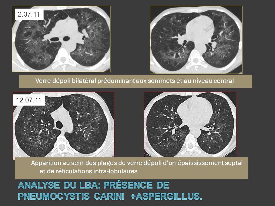 Analyse du LBA: présence de PNEUMOCYSTIS CARINI +aspergillus.