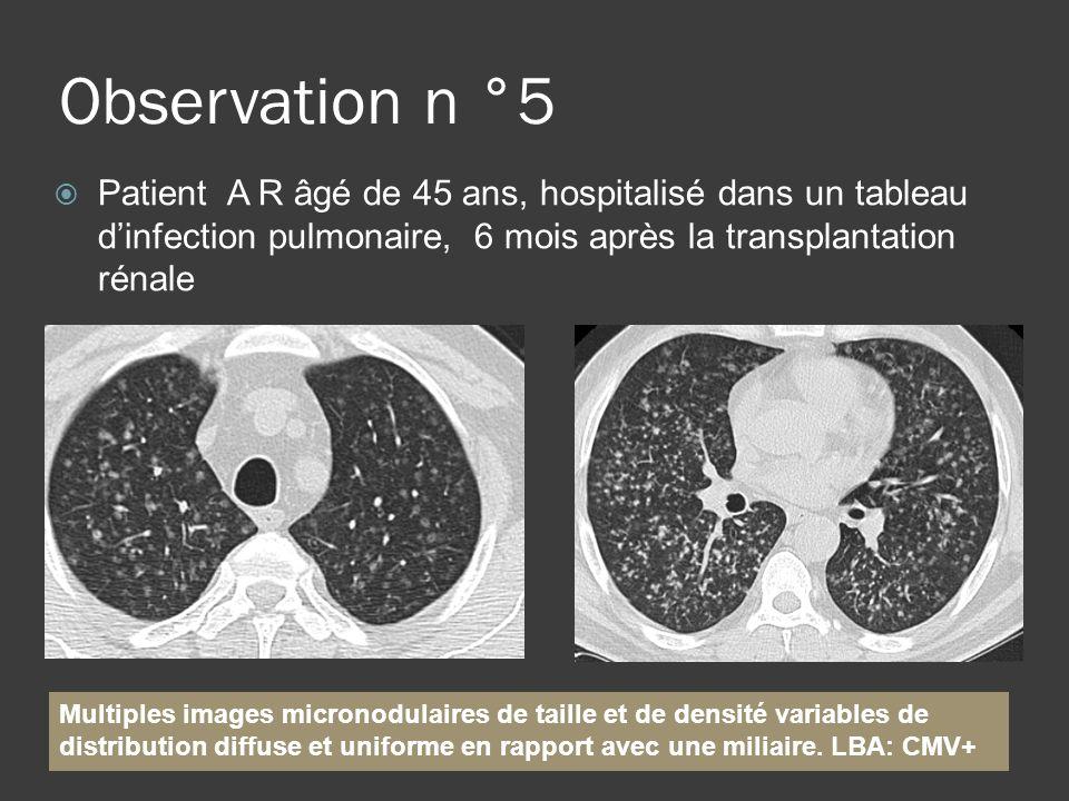 Observation n °5 Patient A R âgé de 45 ans, hospitalisé dans un tableau d'infection pulmonaire, 6 mois après la transplantation rénale.