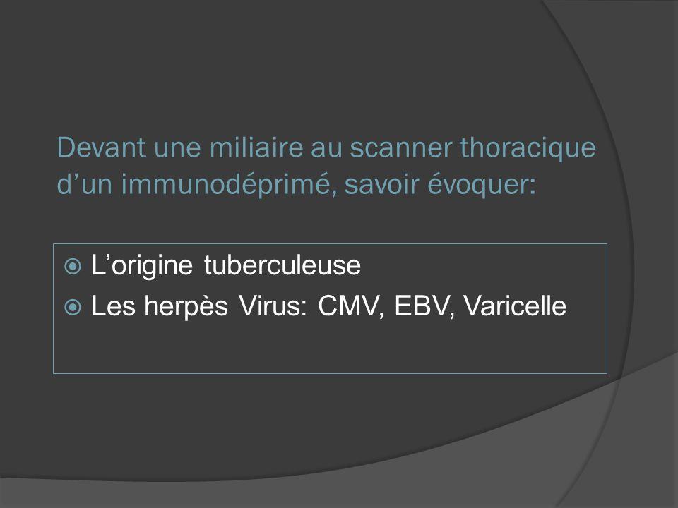 Devant une miliaire au scanner thoracique d'un immunodéprimé, savoir évoquer: