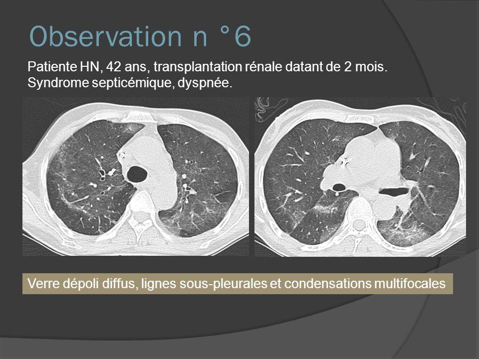 Observation n °6 Patiente HN, 42 ans, transplantation rénale datant de 2 mois. Syndrome septicémique, dyspnée.