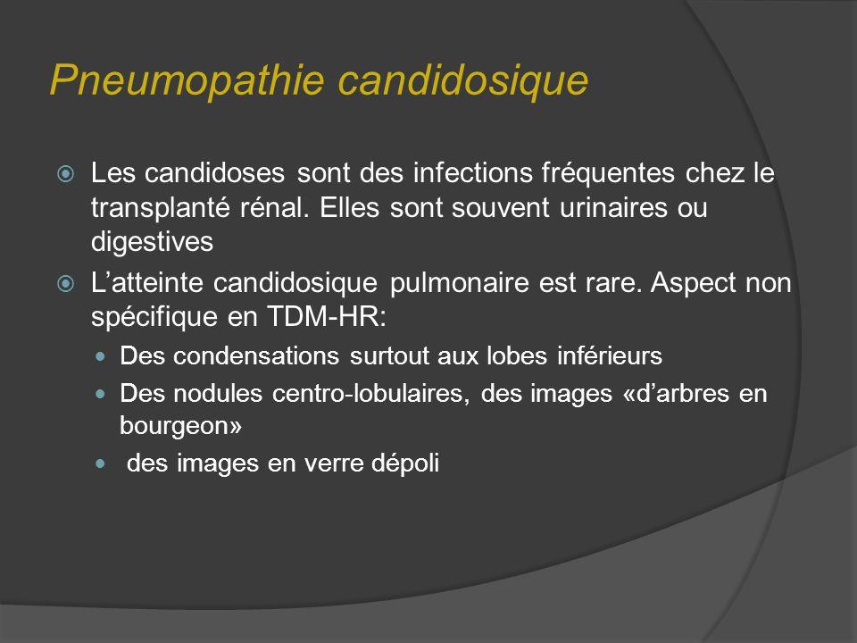 Pneumopathie candidosique